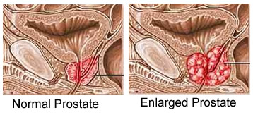 enlarged prostate causes