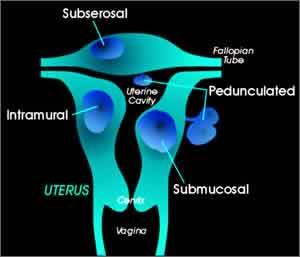 Fibroids chinese medicine